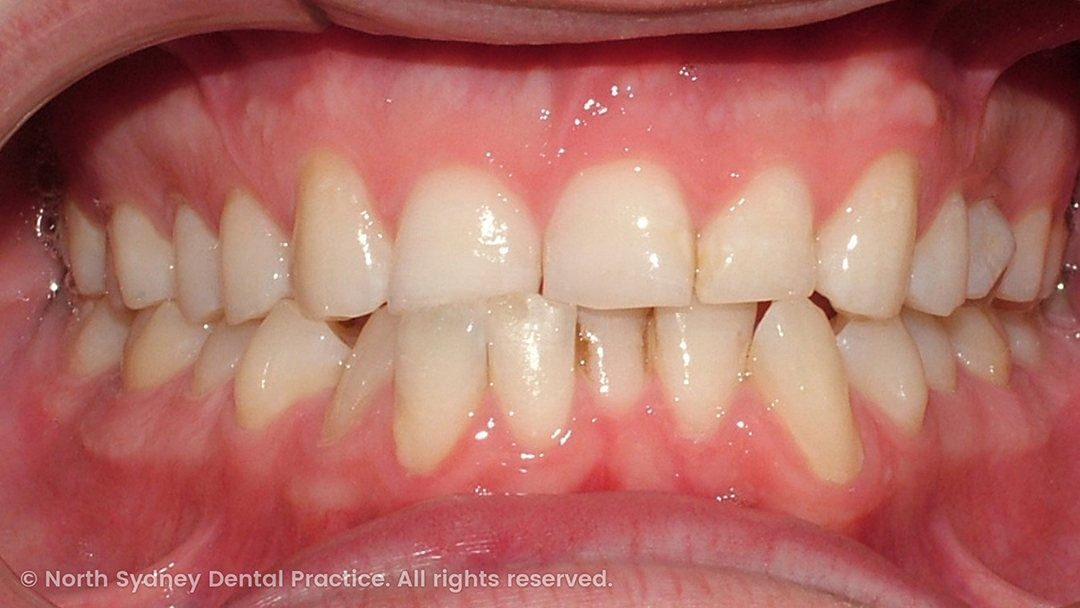 north-sydney-dental-practice-dr-hargreave-real-results-individual-condition-0029-matthew-invisalign-01