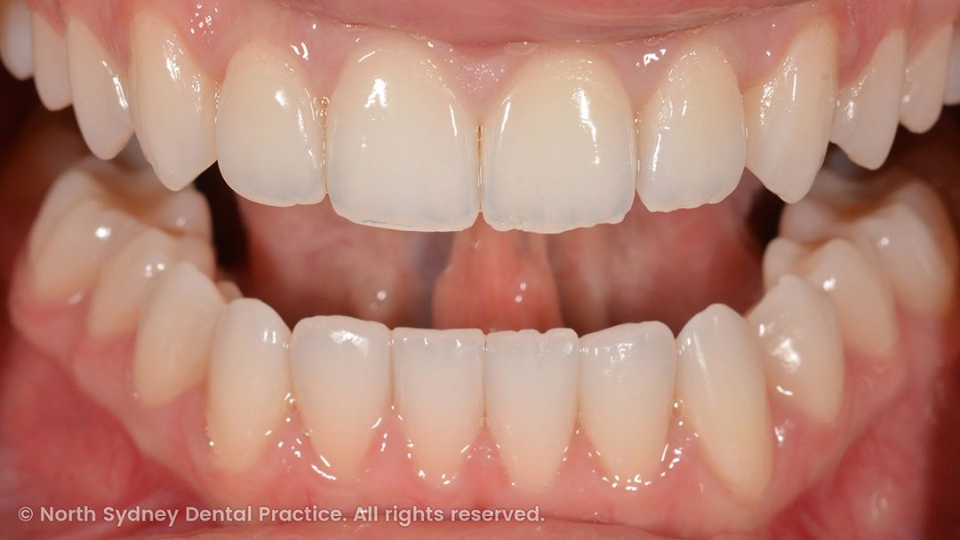 north-sydney-dental-practice-dr-hargreave-real-results-individual-condition-6990-composites-01x