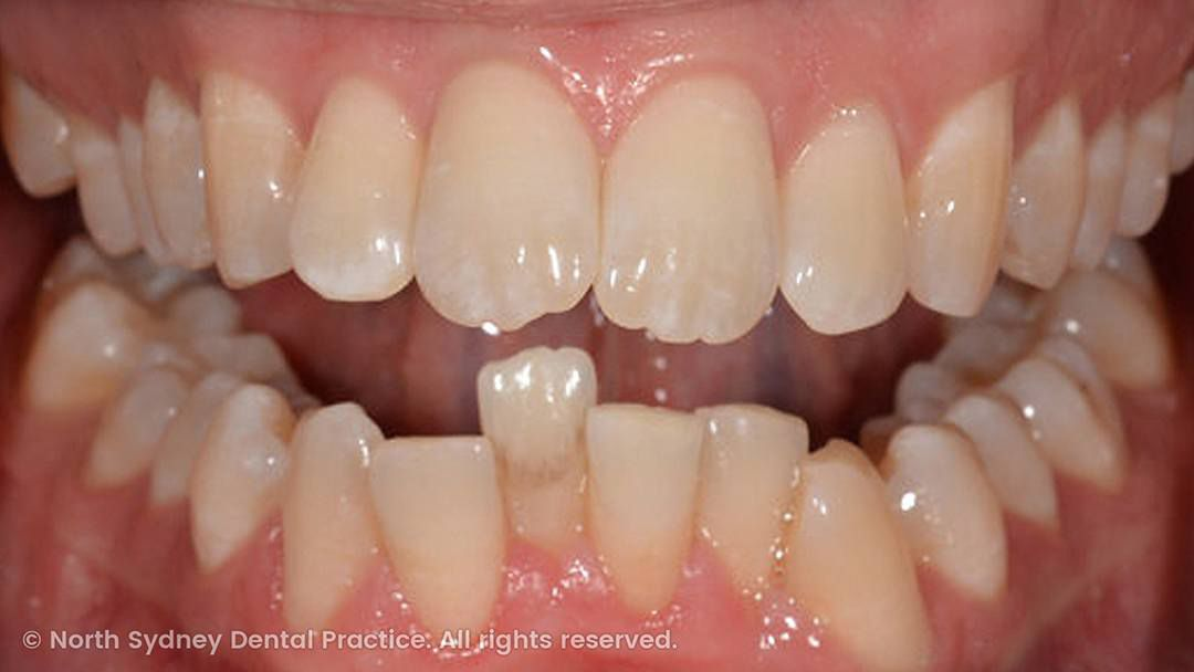 north-sydney-dental-practice-dr-hargreave-real-results-individual-condition-adf-invisalign-01x