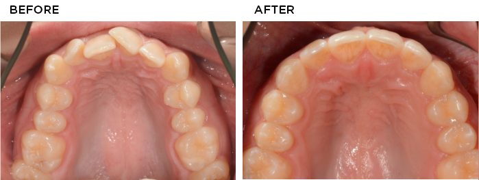 invisalign-before-after-small-2