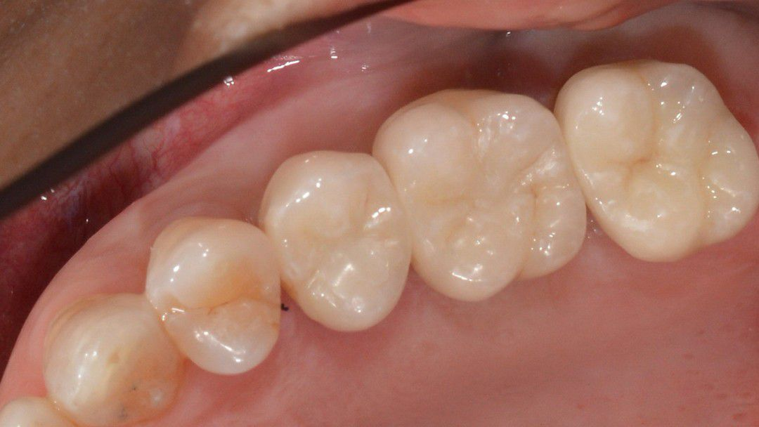 Implant and Cerec After