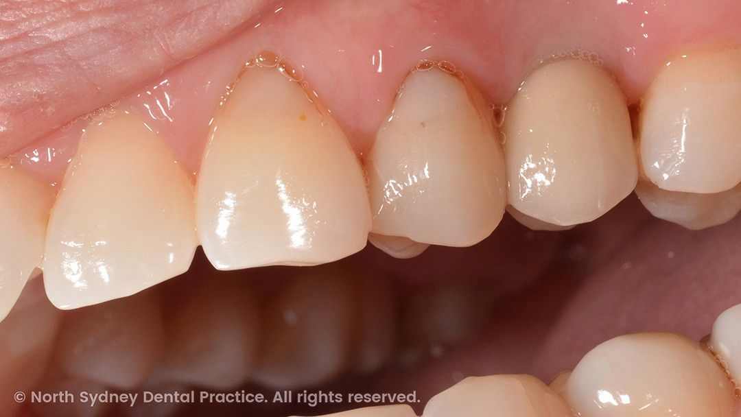 north-sydney-dental-practice-dr-hargreave-real-results-individual-condition-0001-implant-side-02