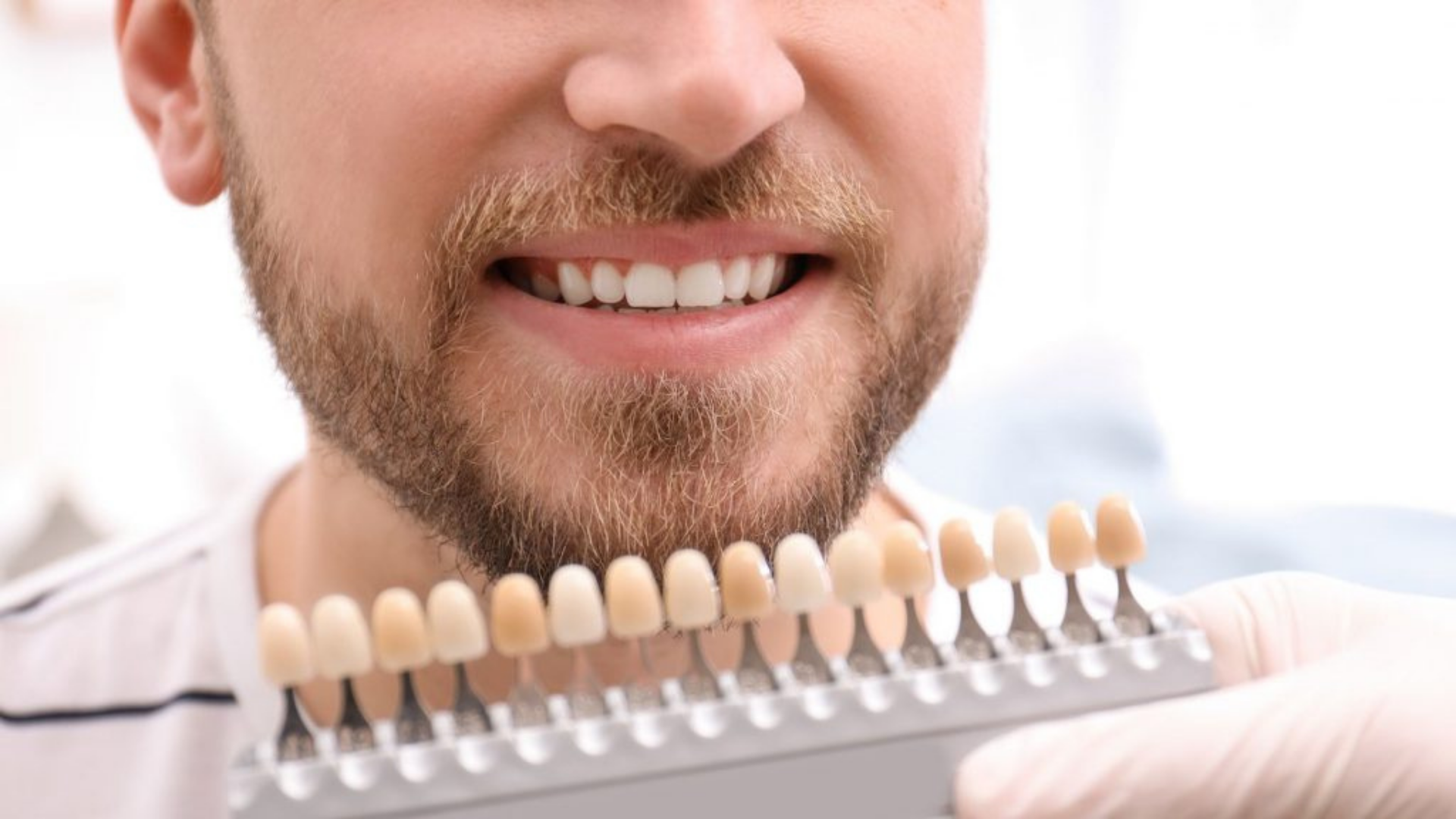 How long does professional teeth whitening last
