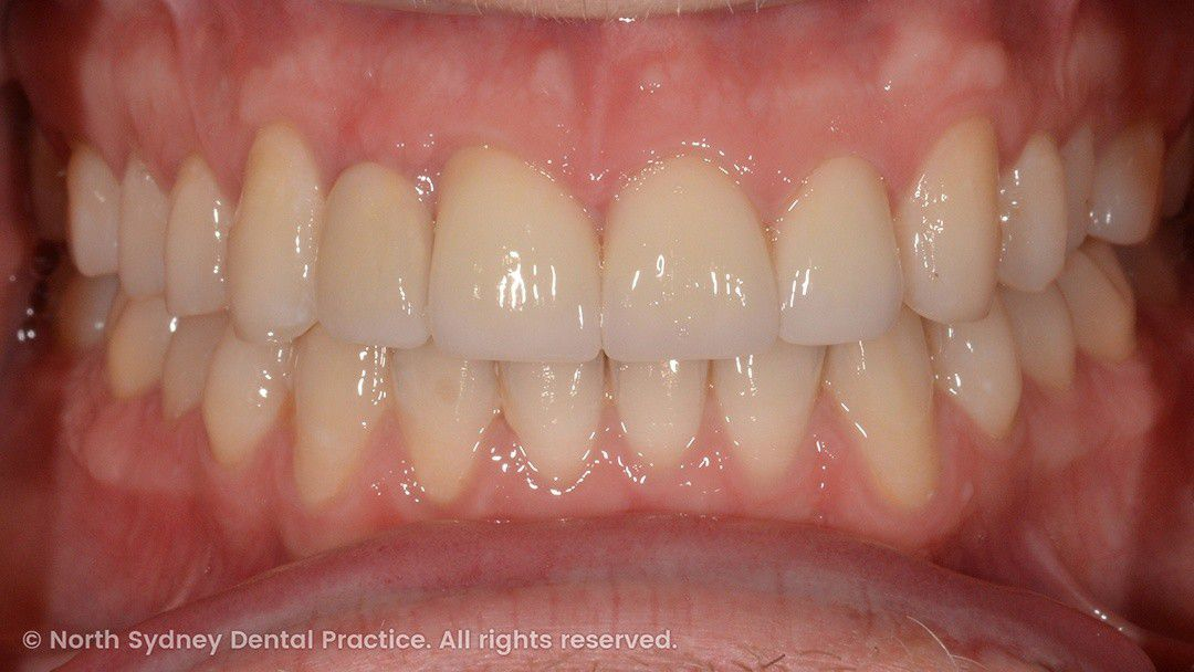 north-sydney-dental-practice-dr-hargreave-real-results-individual-condition-0029-matthew-invisalign-02